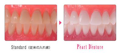 Pearl(BeforeAfter).jpg